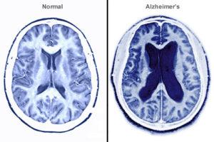 Las transfusiones de sangre pueden ayudar a los pacientes de Alzheimer